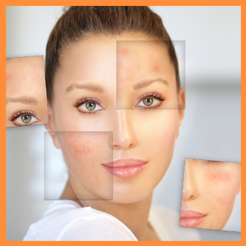 Get Rid of Acne Naturally